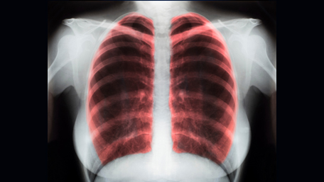 x ray of a lung